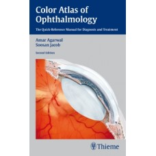 Agarwal, Color Atlas of Ophthalmology