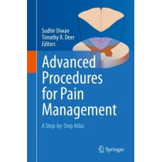 Diwan, Advanced Procedures for Pain Management