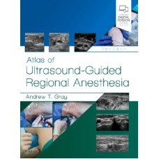 Gray, Atlas of Ultrasound-Guided Regional Anesthesia