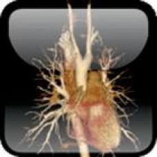 Alston, Oxford Textbook of Cardiothoracic Anaesthesia