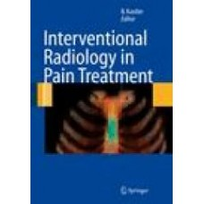 Kastler, Interventional Radiology in Pain Treatment